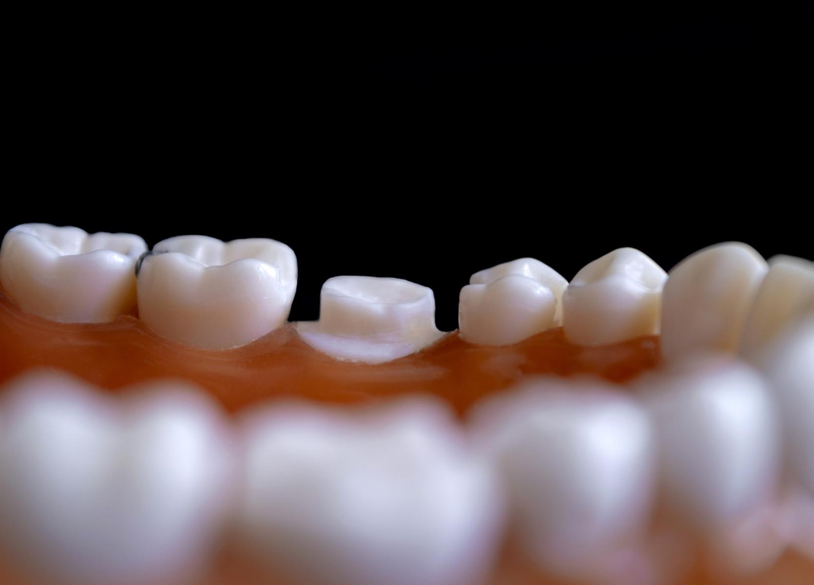 dentistry-4472925_1920